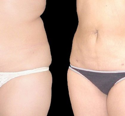 How to Make Sure you are Getting the Right Liposuction Procedure